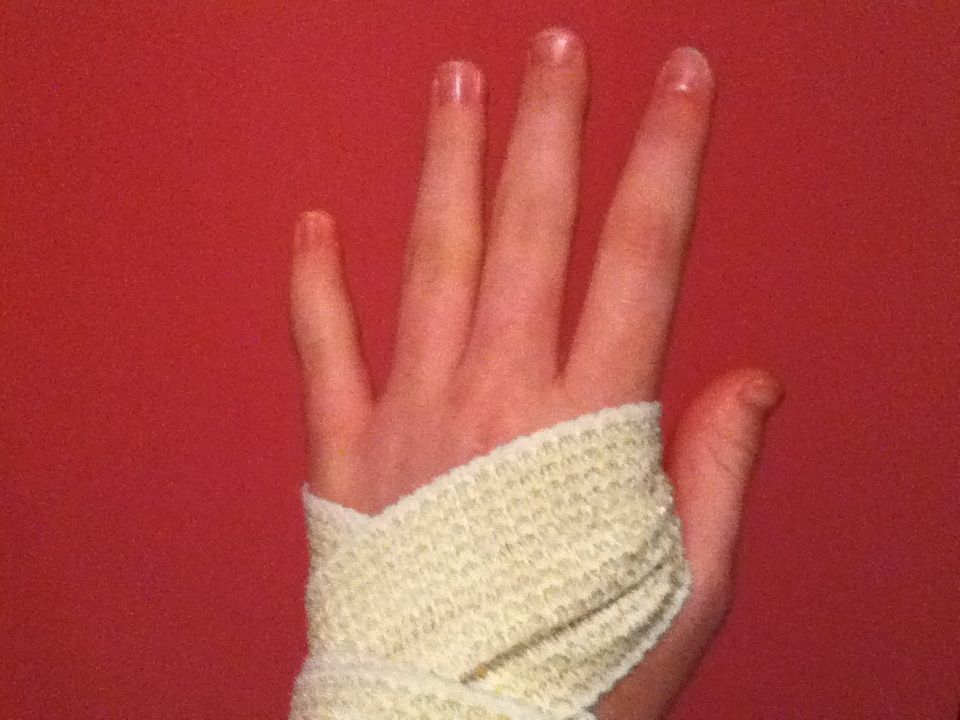Fastest Way To Fix A Sprained Wrist