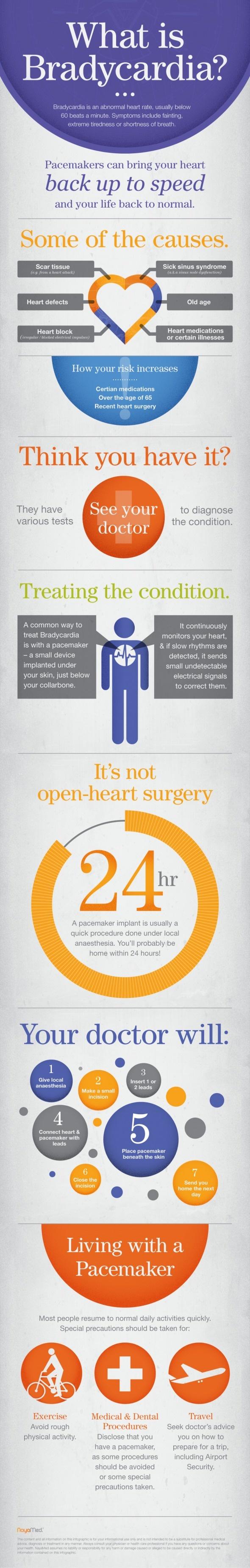 How to explain Bradycardia to your patients #Dailylifebuff ...