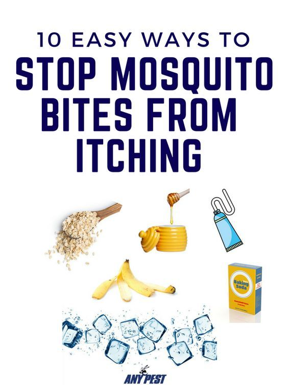 How can you stop mosquito bites from itching? Check out 10 easy (and natural) ways to stop mosquito bites from itching! #mosquitoplants