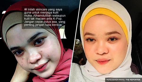 'Alhamdulillah, walaupun kulit muka tak macam artis KPop