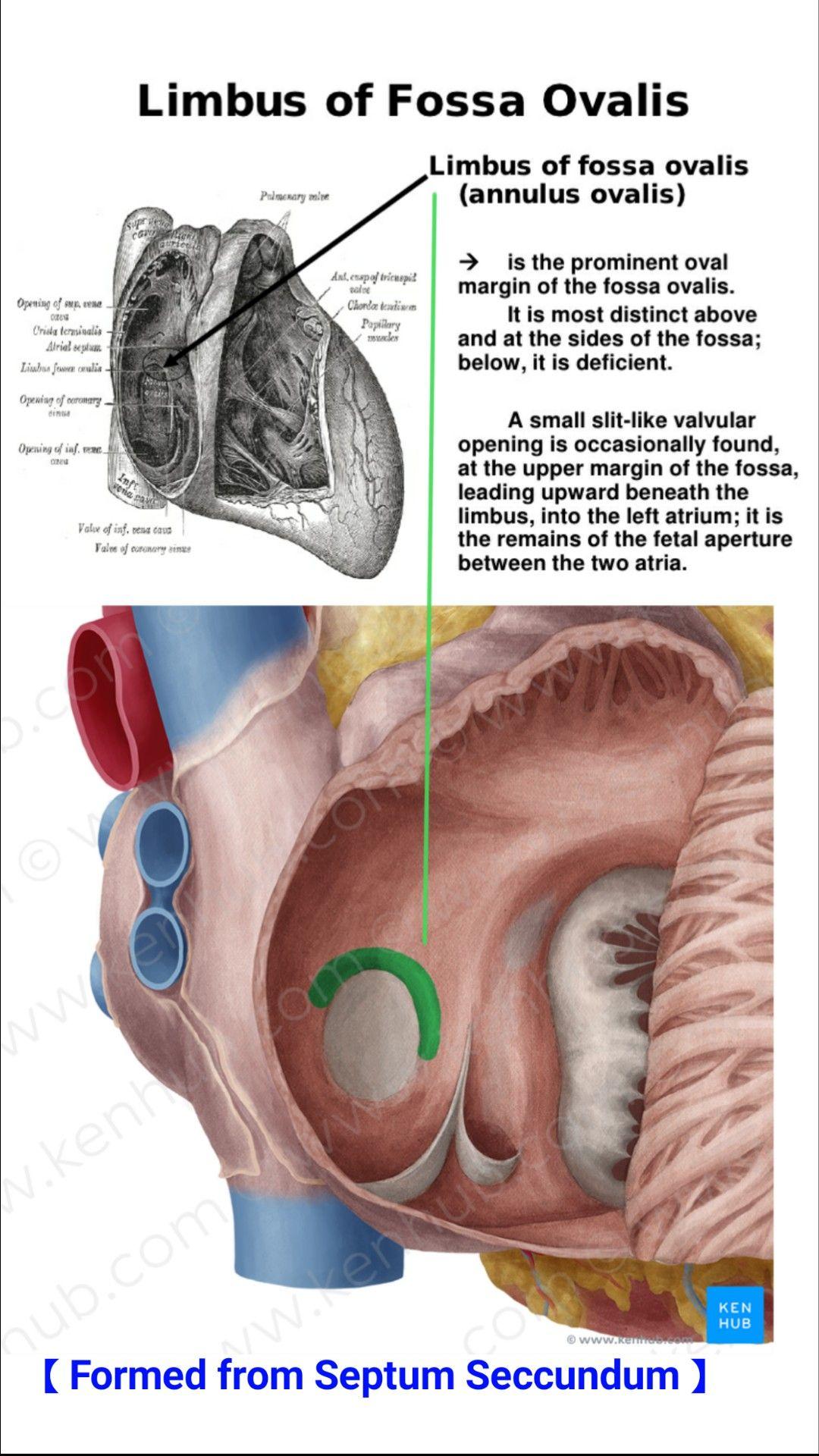 Limbus Fossa Ovalis Embryology Pinterest Anatomy