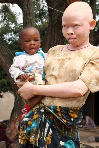 Albino humans are hunted and eaten | Albino human, Albino ...