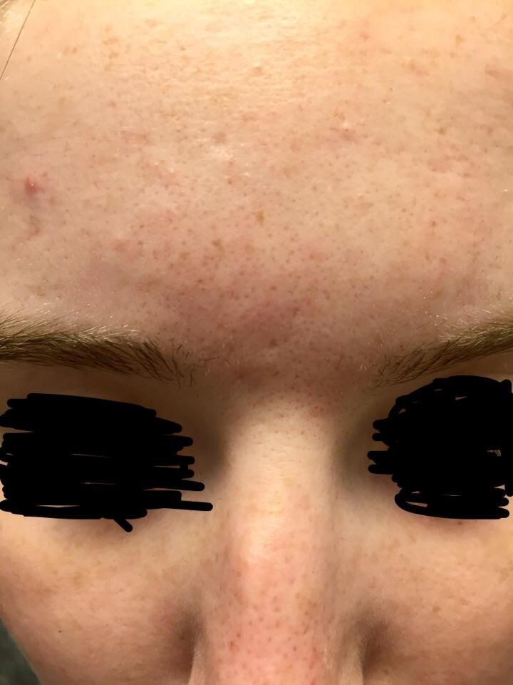 Skin Concerns] What are the small