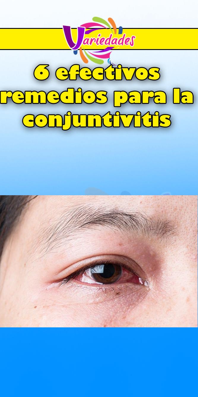 ¿Puede la infección sinusal convertirse en conjuntivitis