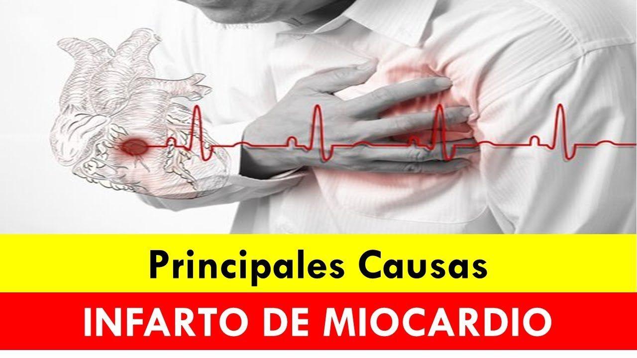 cuando se produce un infarto de miocardio