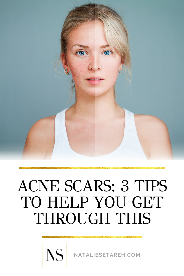 Do you struggle with acne? If you do, chances are that you