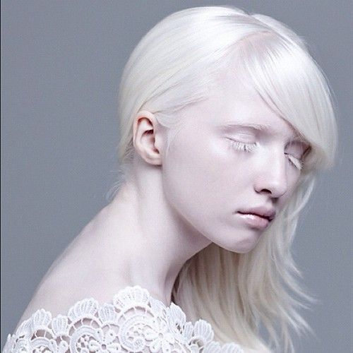 beautiful albino people | especially was fascinated by ...
