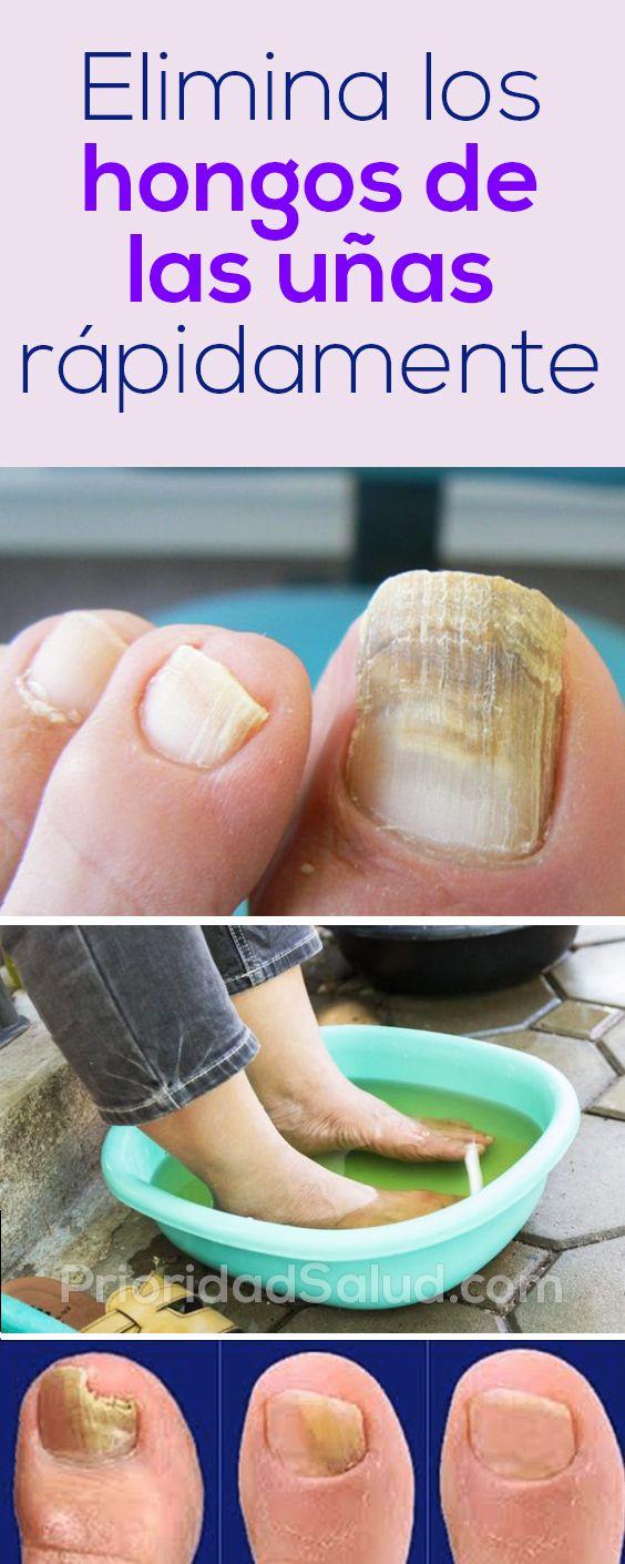 Como eliminar los hongos de la uñas de los pies rapidamente