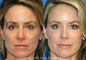 Remarkable facial fat transfer filler