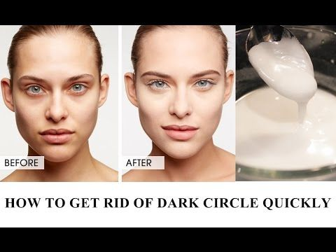 HOW TO GET RID DARK CIRCLE QUICKLY | Dark circles under ...
