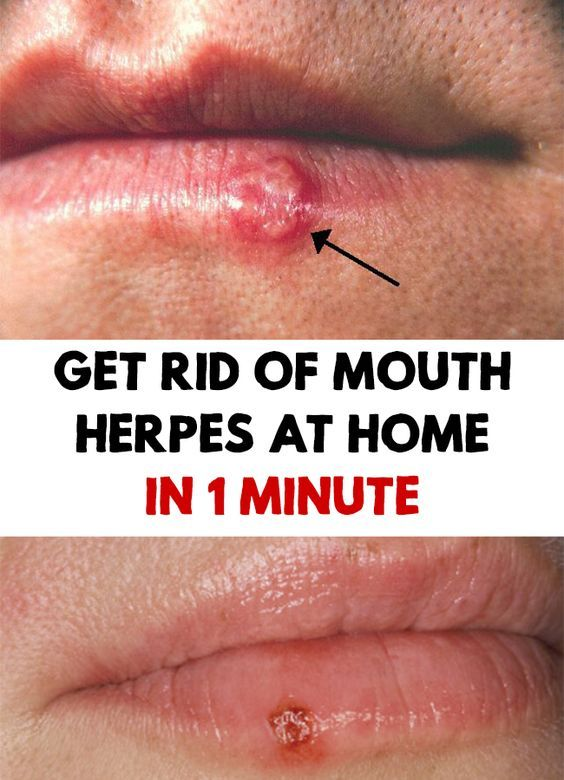 Get Rid Of Mouth Herpes At Home In 1 Minute  Animal Lovers  Pinterest  Sant, Sant Bien Tre -9472
