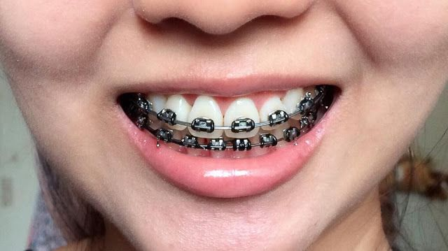 Foods You Can No Longer Eat With Braces