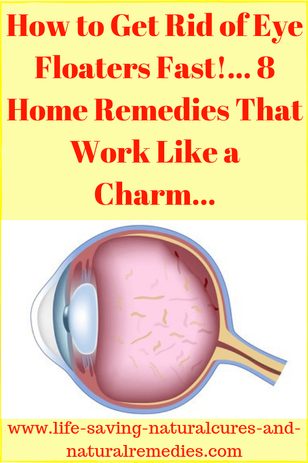 8 Best Natural Remedies Home Treatments For Eye Floaters Home Remedies Remedies Eye Floaters Cure