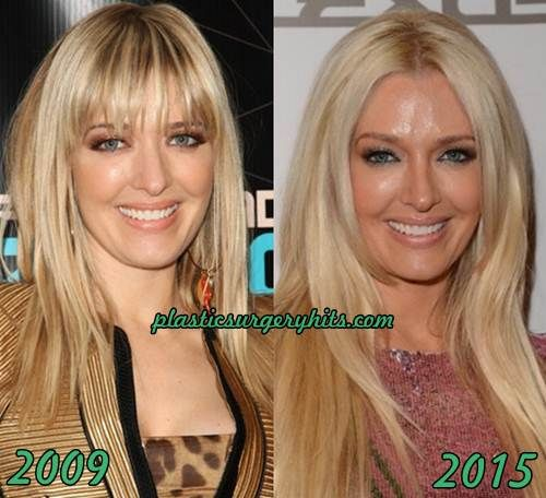 Erika Jayne Plastic Surgery Fact or Rumor | Makeup in 2019