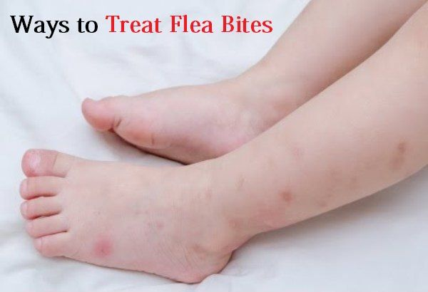How To Get Rid Of Bed Bug Bites Overnight Treat Surot Bite Home
