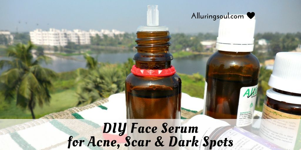 DIY Face serum for acne is the greatest thing you can ever give to your skin. Here i am going to share my first experience how i cleared my acne. #TumericFaceMaskGlowingSkin #faceserum