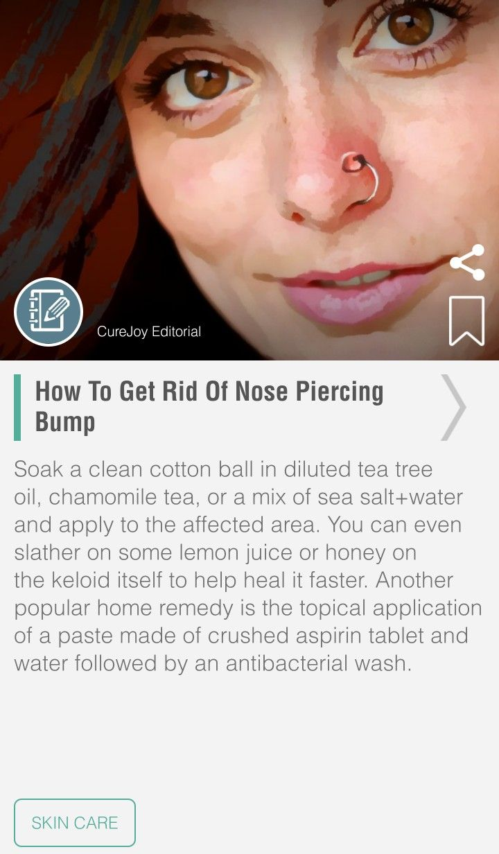 Aspirin on piercing bump before and after  Pin by Sonya on Good Info  Pinterest
