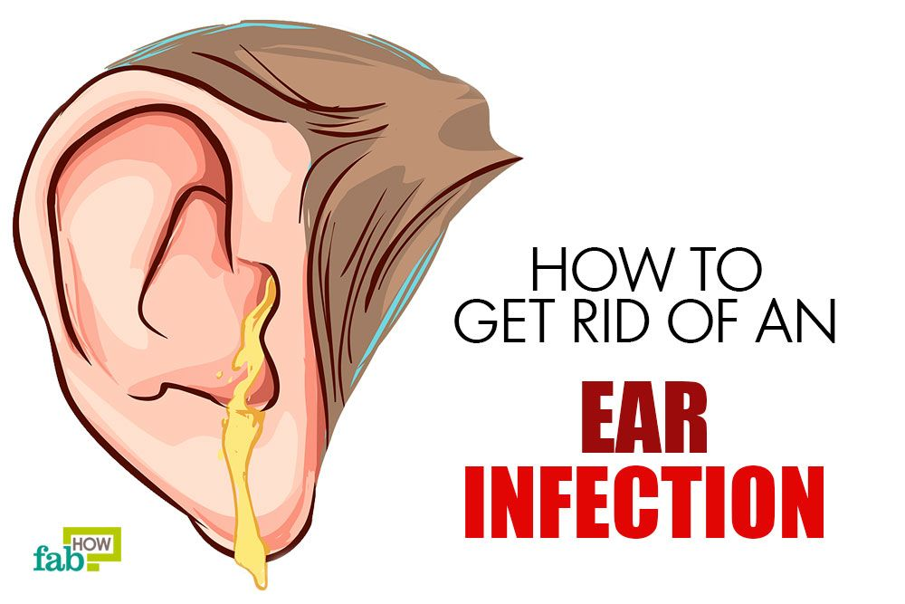 Get Rid Of Ear Infection With Home Remedies Ear Infection Remedy Ear Infection Home Remedies Baby Ear Infection Remedies