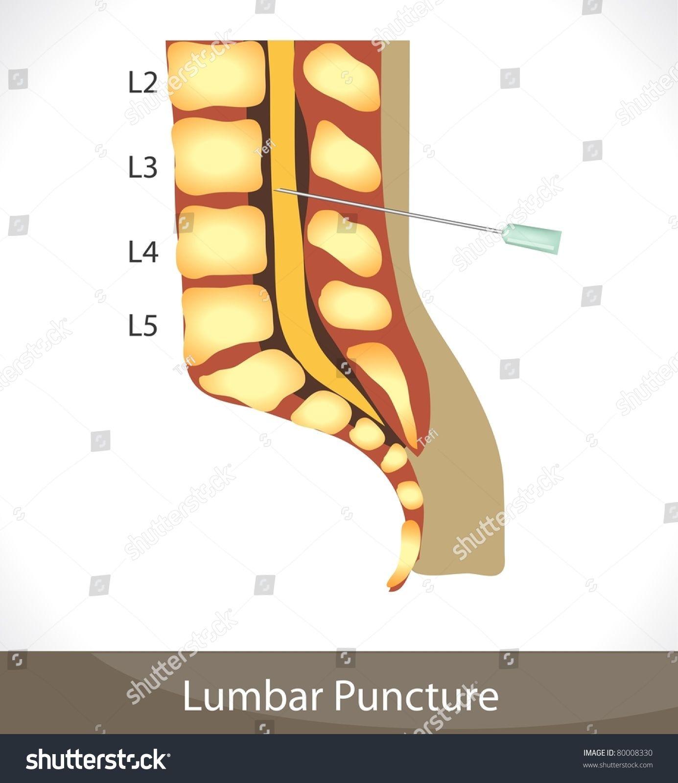 Lumbar Puncture Detailed Diagram Of Lumbar Puncture Spine Anatomy Diagram