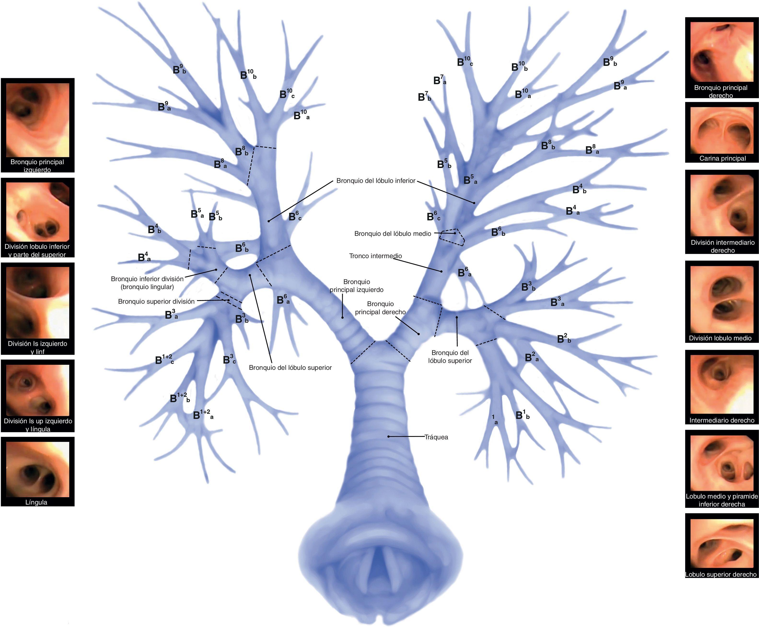 Fantástico Anatomía De La Vía Aérea Foto - Imágenes de Anatomía ...
