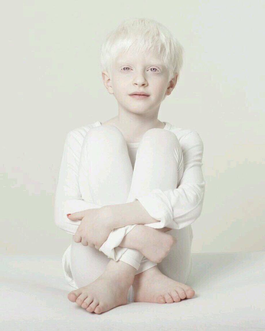 Albinism Is A Condition Some People And Animals Are Born With This Condition Is Caused By A Lack Of Pigment Colo Albinism Face Photography Beautiful Children
