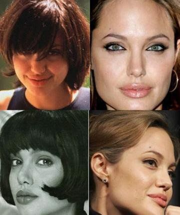 Джолли пластики носа