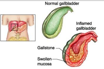 acalculous cholecystitis image | Medical surgical nursing ...