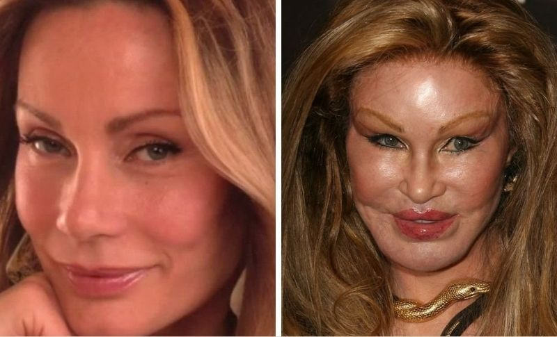 celeb plastic surgery gone wrong 20 worst cases of celebrity plastic