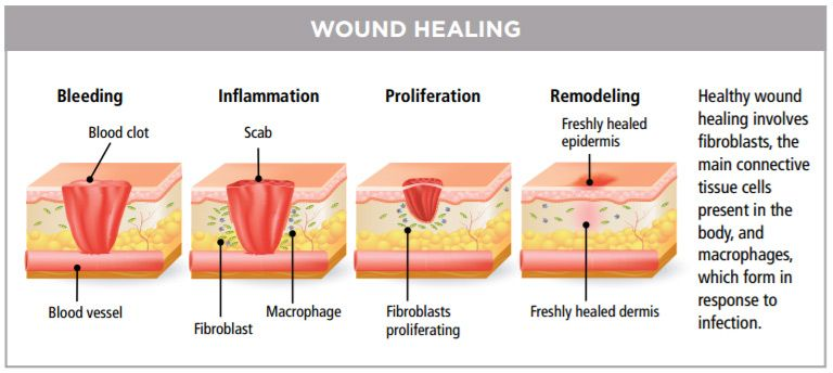 Wound Healing Center At Inova Loudoun Treats Complex Wound