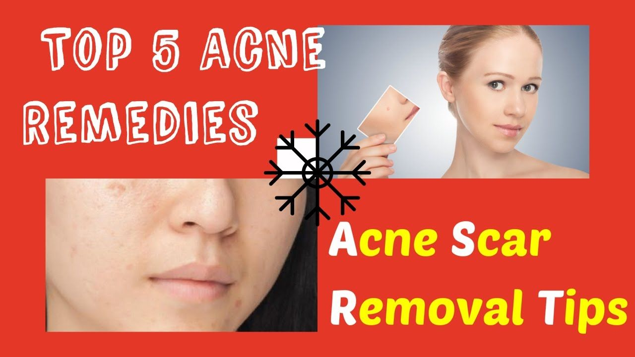 That Work Acne Fast Homemade Remedies