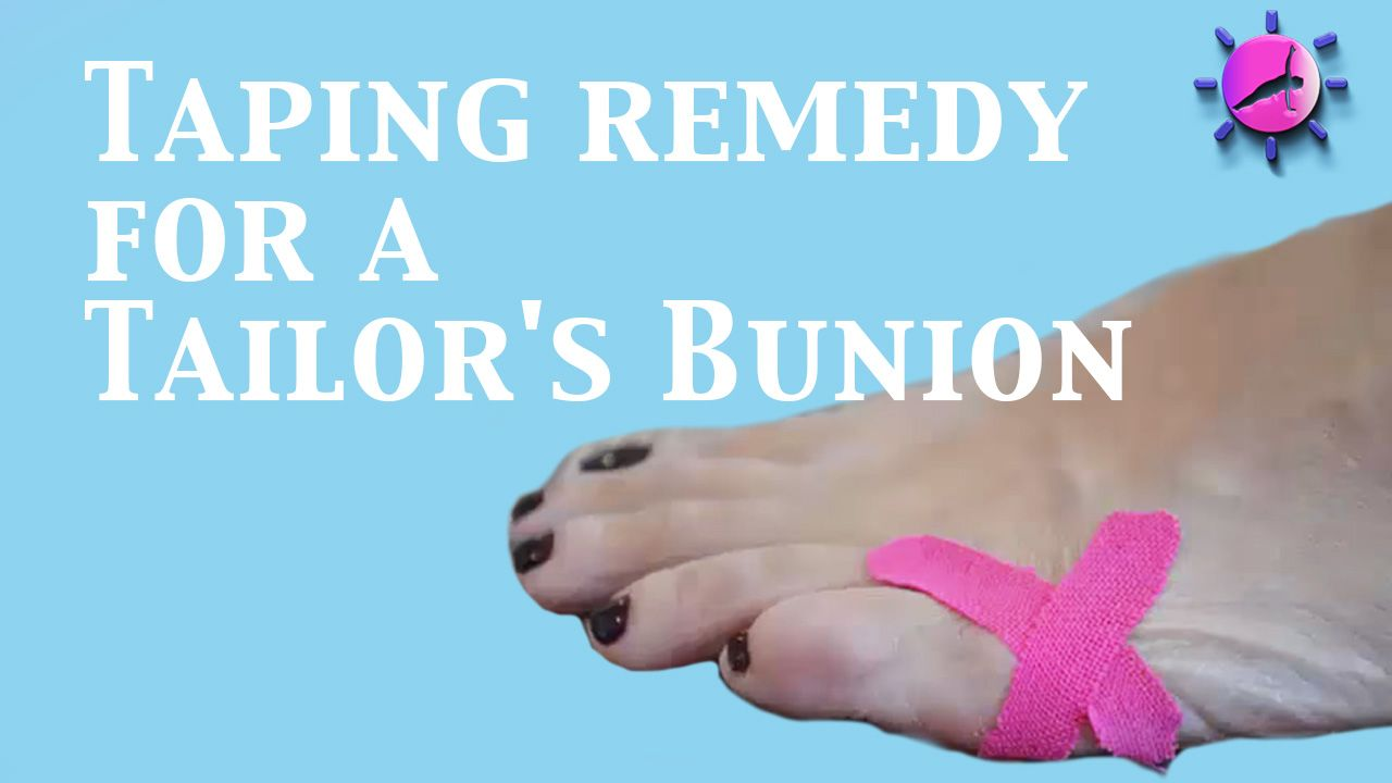 17++ How to tape your bunion trends