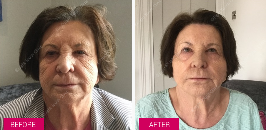 Before and After #Filler at the Light Touch Clinic. #Amazing results!