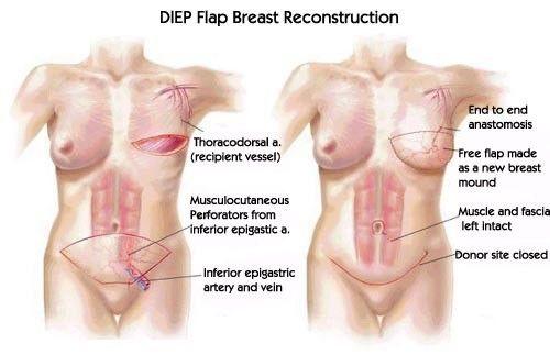 Autologous DIEP Flap Breast Reconstruction   Mastectomy ...