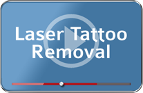 Advanced Tattoo Removal Removing Unwanted Body Art Advanced Life Clinic How To Remove Clinic Aesthetic