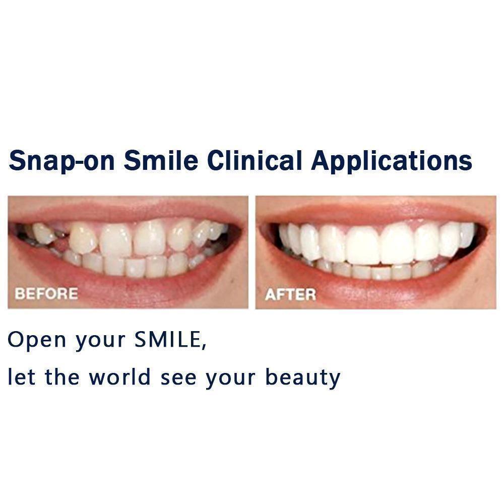 Magic Smile Teeth Brace in 2020 Smile