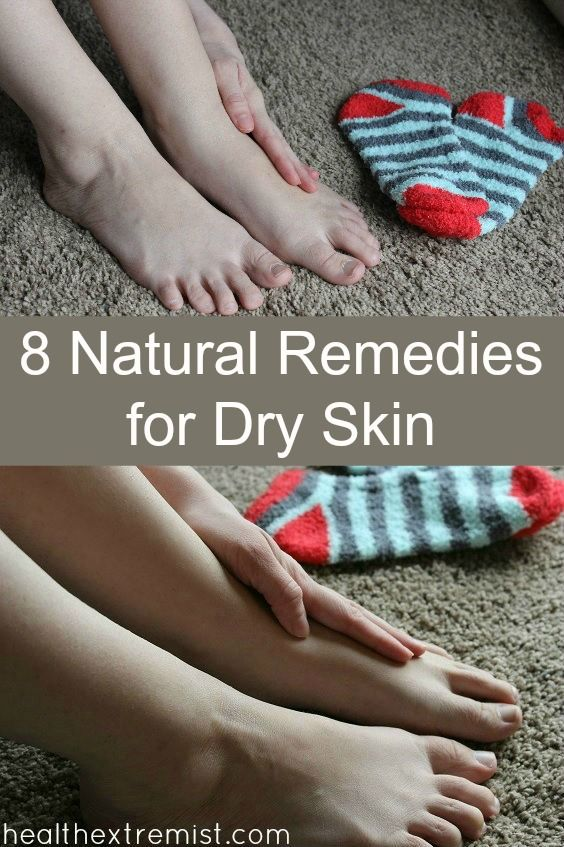 8 Natural Home Remedies for Dry Skin - Great for face and body. Even for acne prone skin too!