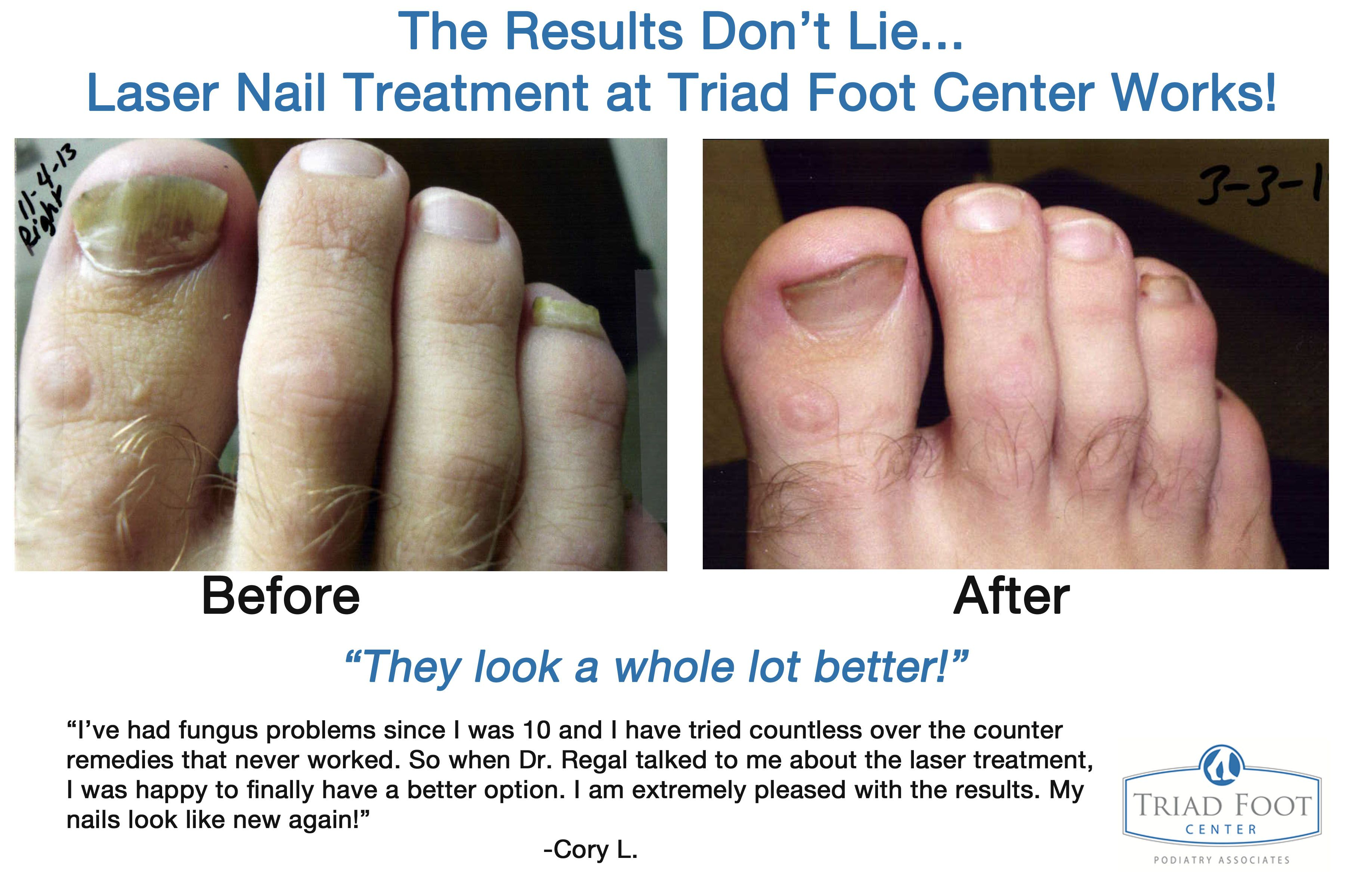 See what Cory has to say about Q-Clear laser treatment for toenail ...
