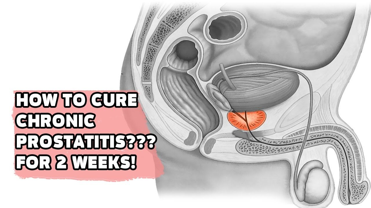 How to cure prostatitis 79