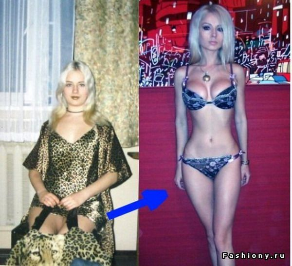 Valeria Lukyanova real life Barbie Before and After Plastic Surgery (Photographs)