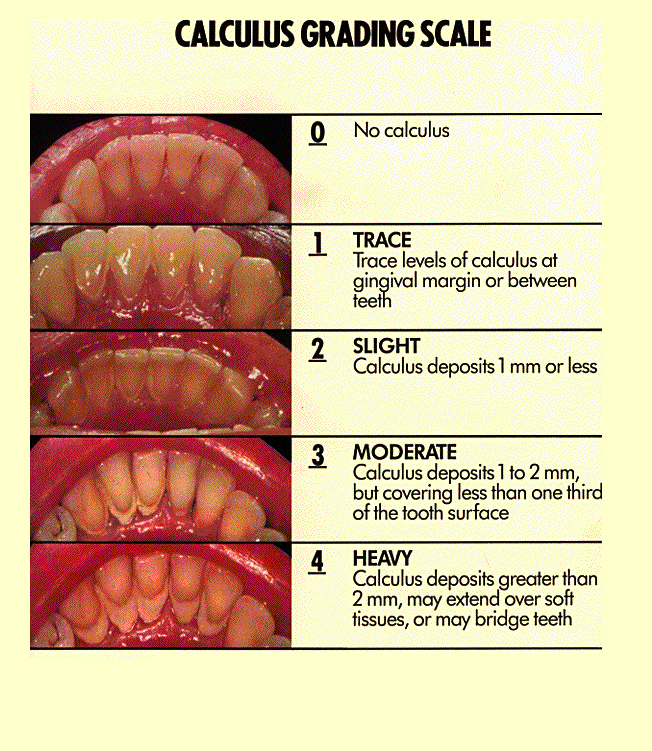 Calculus grading scacle tartar dental also how to get rid of cavities    pinterest rh