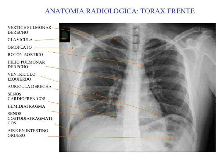 Radiografía de tórax donde se señalan algunas partes del corazón y ...
