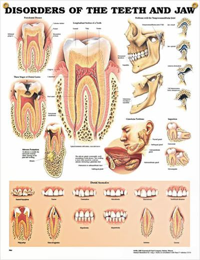 Disorders Of The Teeth And Jaw Chart 20x26 Abc Fast Pins