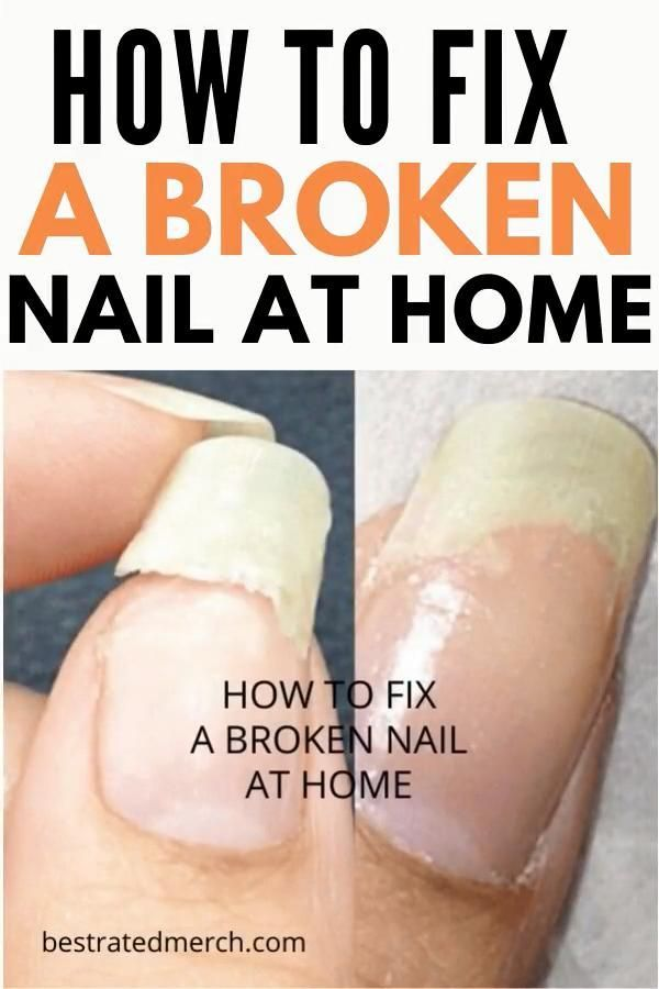 Hair Loss and Brittle Nails - An Effective Natural