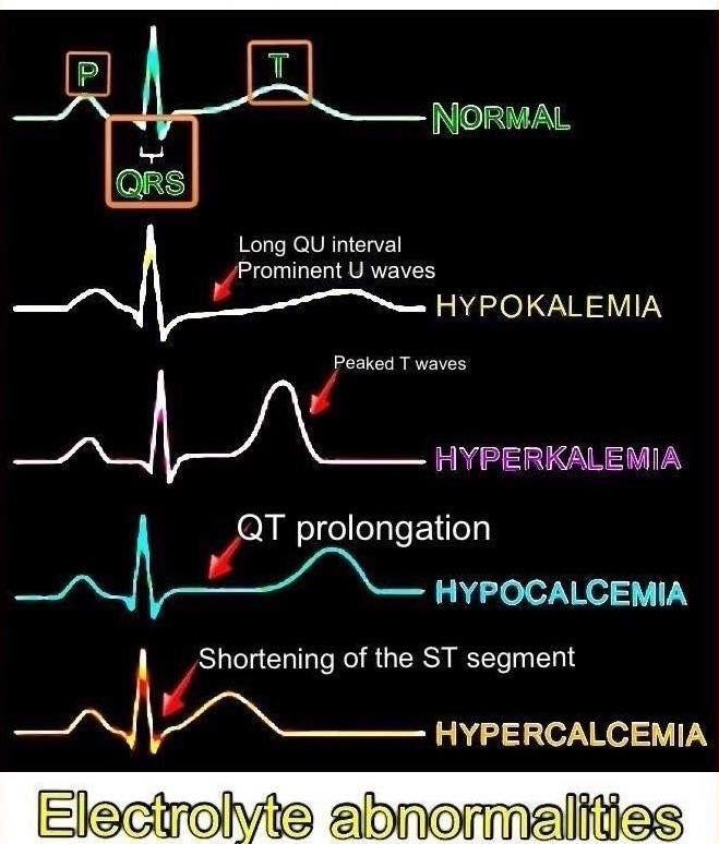 Stress Test Near Me: ECG Electrolyte Abnormalities