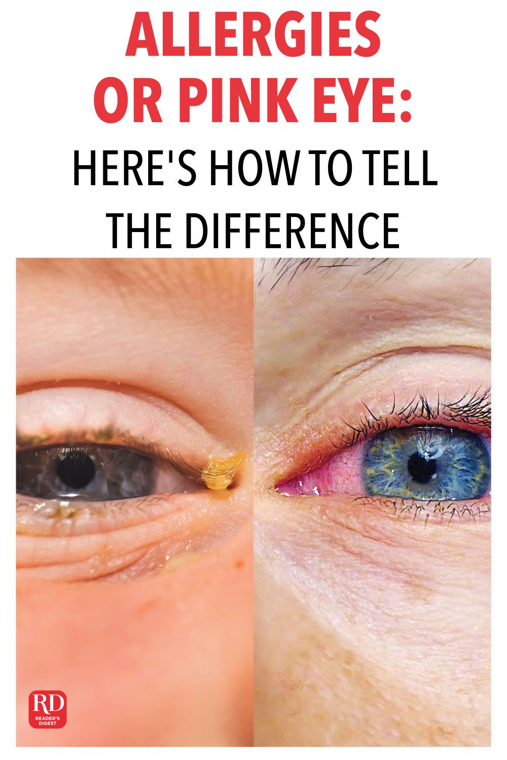 Allergies Or Pink Eye Here S How To Tell The Difference Pink