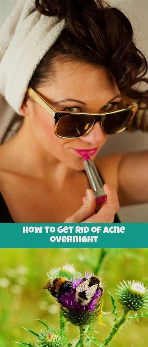 how to get rid of #acne overnight_581_20180907030322_64 can you get #acne under a mole, feline chin acne cats, pastil... - how to get rid of #acne overnight_581_20180907030322_64 can you get #acne under a mole, feline chin acne cats, pastilla para acne xifaxan 200mg parasites, be… | Chin Acne How To Get Rid Of | Chin Blackhead Remover | Chin Acne Treatment | How To Get Rid Of Chin Blackheads. #facemask - #diyHormonalAcneTreatment #HormonalAcneTrea #WhatCausesMolesOnSkin