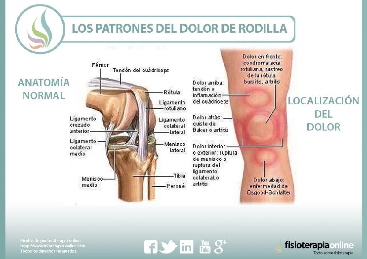 Los Patrones Del Dolor De Rodilla O Gonalgia Y Las Lesiones Más Comunes Fisioonline Dolor En La Rodilla Rodillas Ejercicios De Rehabilitación