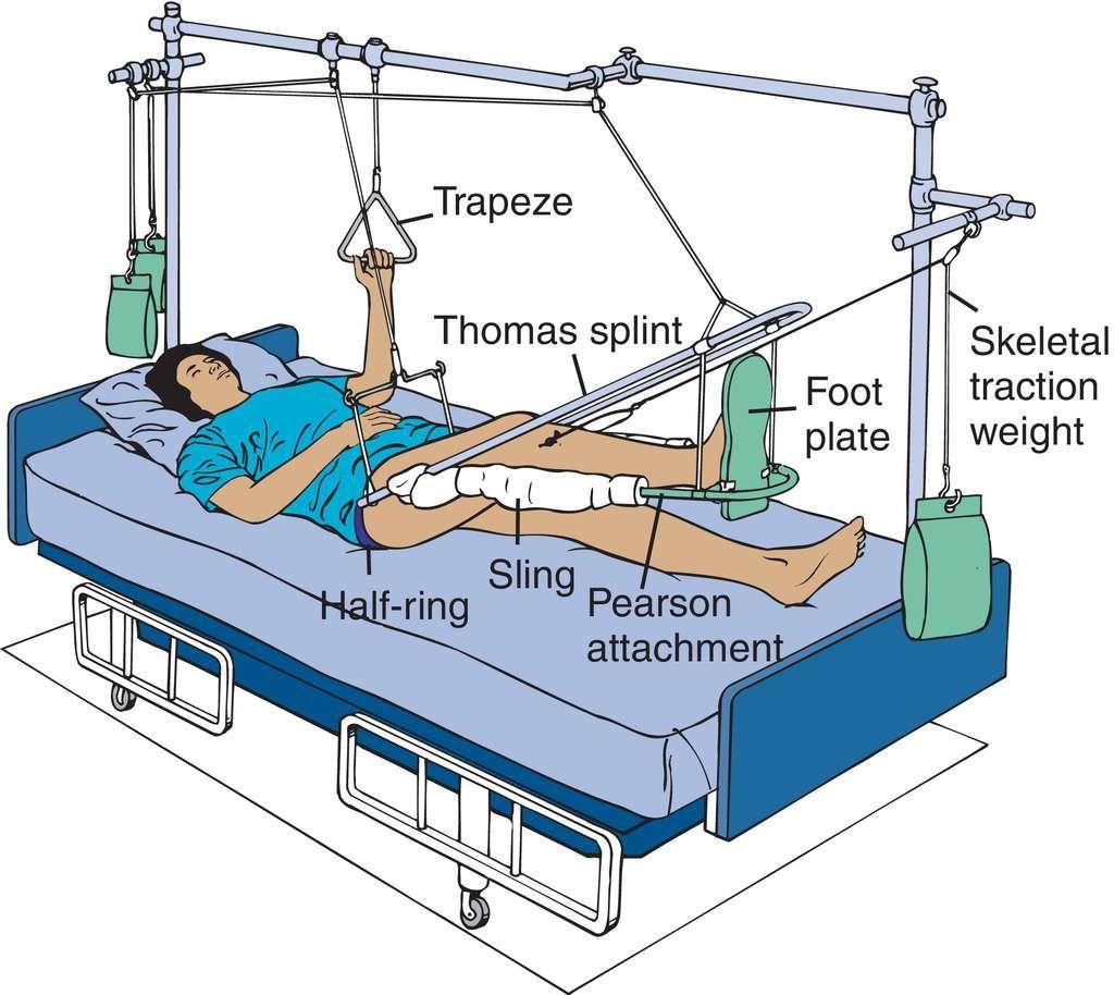 Nurse Teaching Musculoskeletal System Pediatric Nursing [ 914 x 1024 Pixel ]