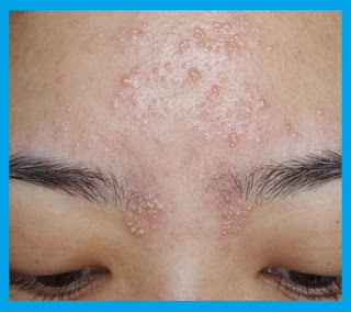 पिंपल हटाने का घरेलू उपाय in 2020 | Skin bumps on face ...