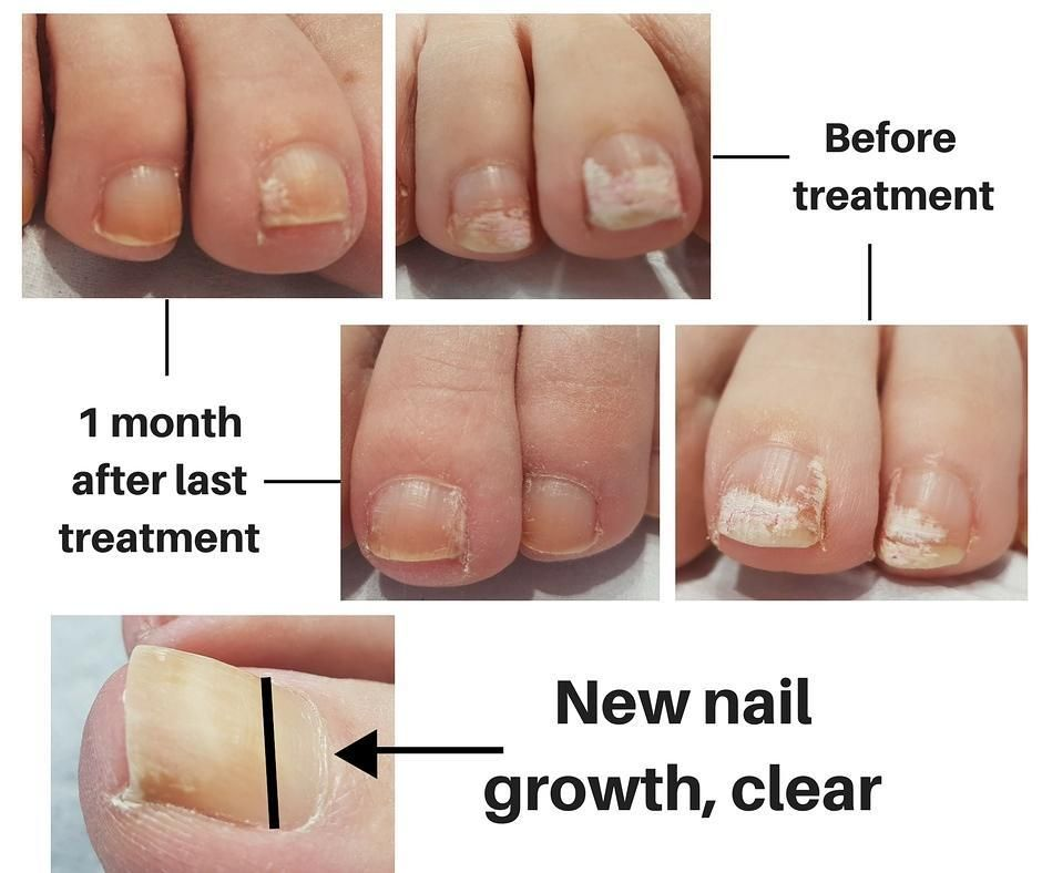 Nail fungus can be cleared with our Nd:Yag Laser This Client ...
